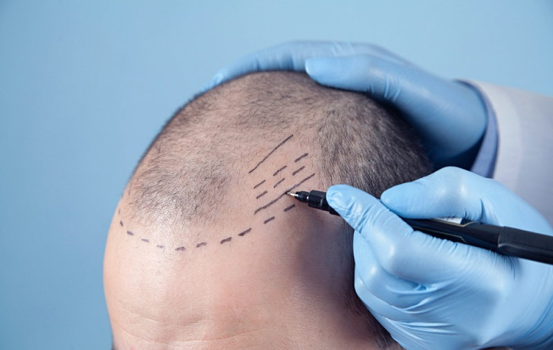 patient suffering hair loss consultation doctor | hair transplant surgery